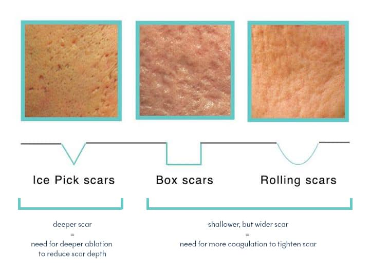 acne scars - Treat ice pick scars, box scars and rolling scars at True Clinic KL