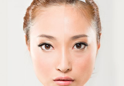 Featured facial rejuvenation treatment in KL, Malaysia