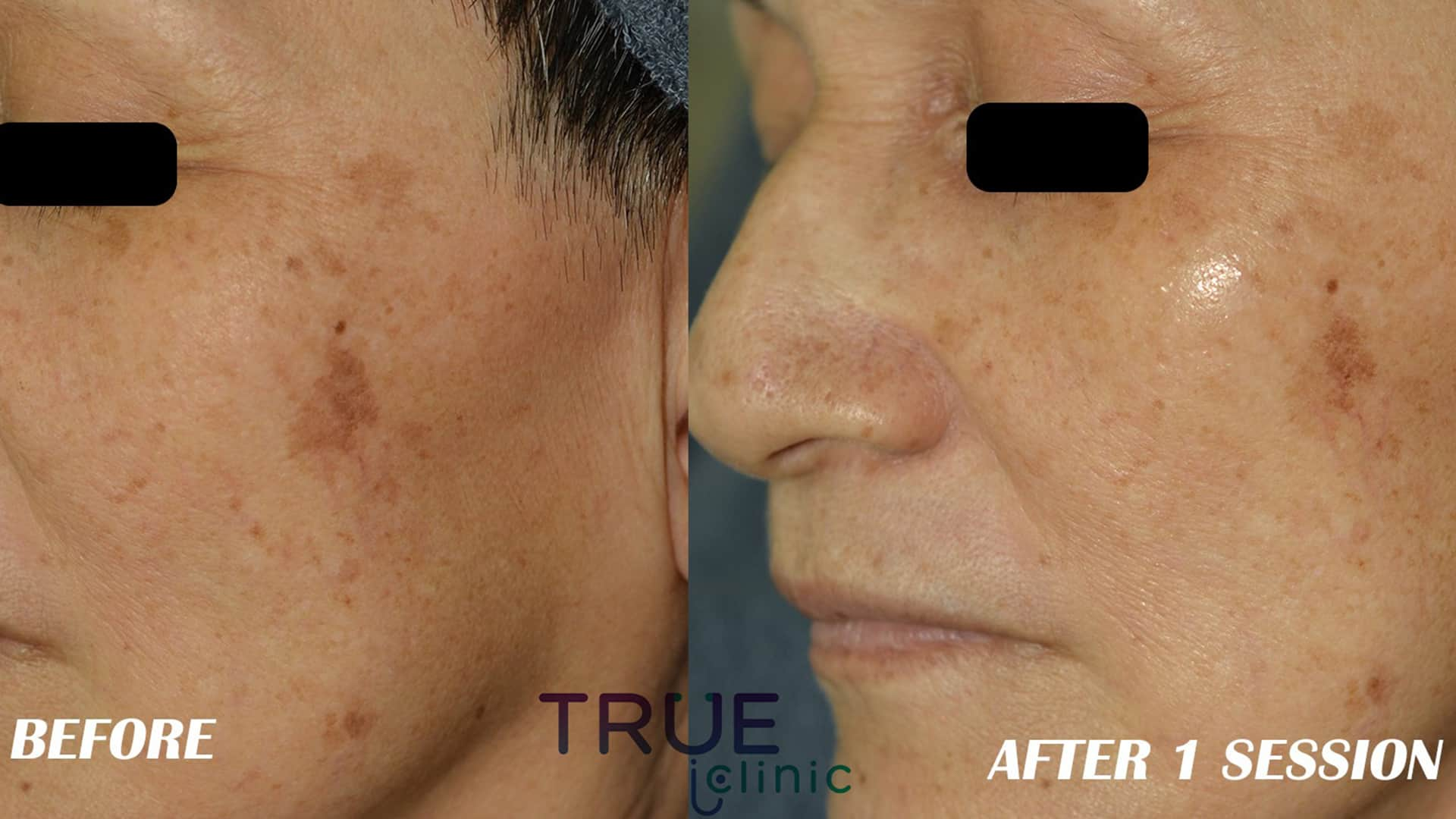 Face treatment PRE AND POST