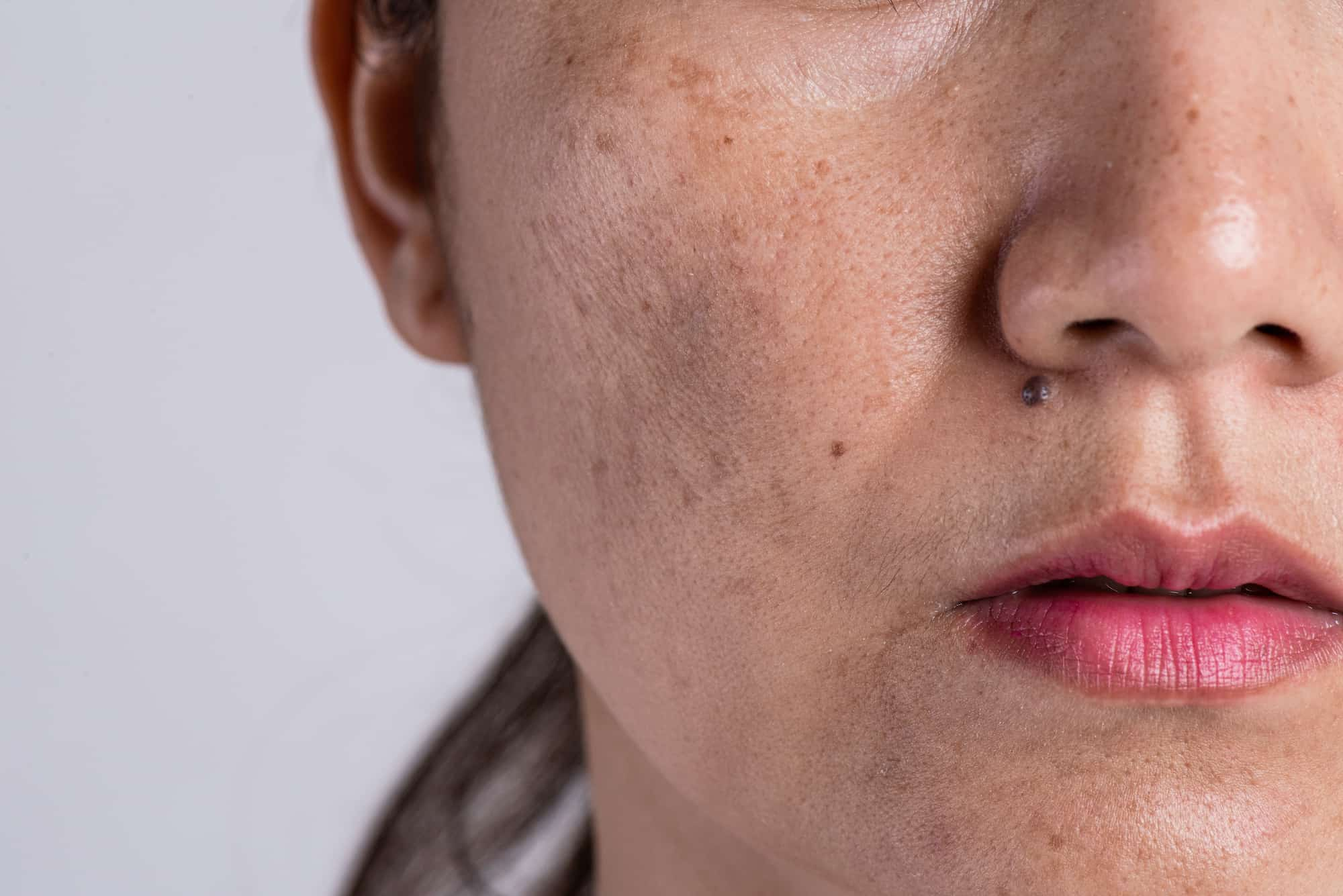 Treatments for skin and acne scars at Kuala lumpur