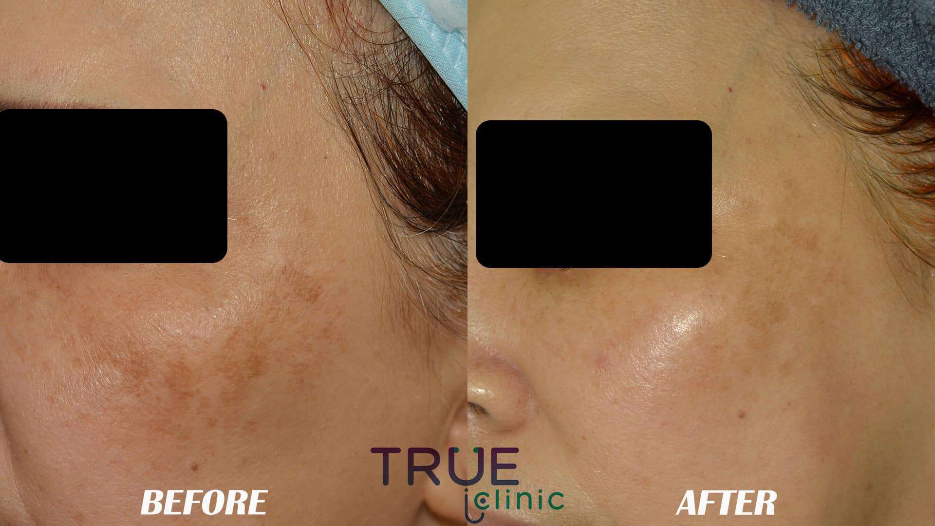 Face treatment PRE AND POST damansara