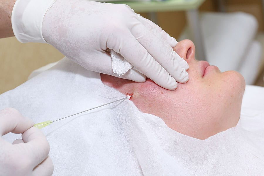 Face Thread Lifting Service at True Clinic KL