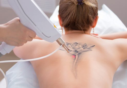 Tattoo removal featured