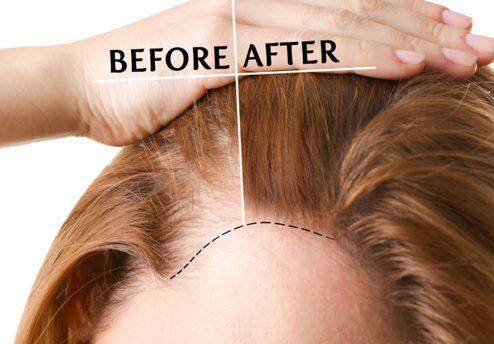 hair loss treatment true clinic damansara