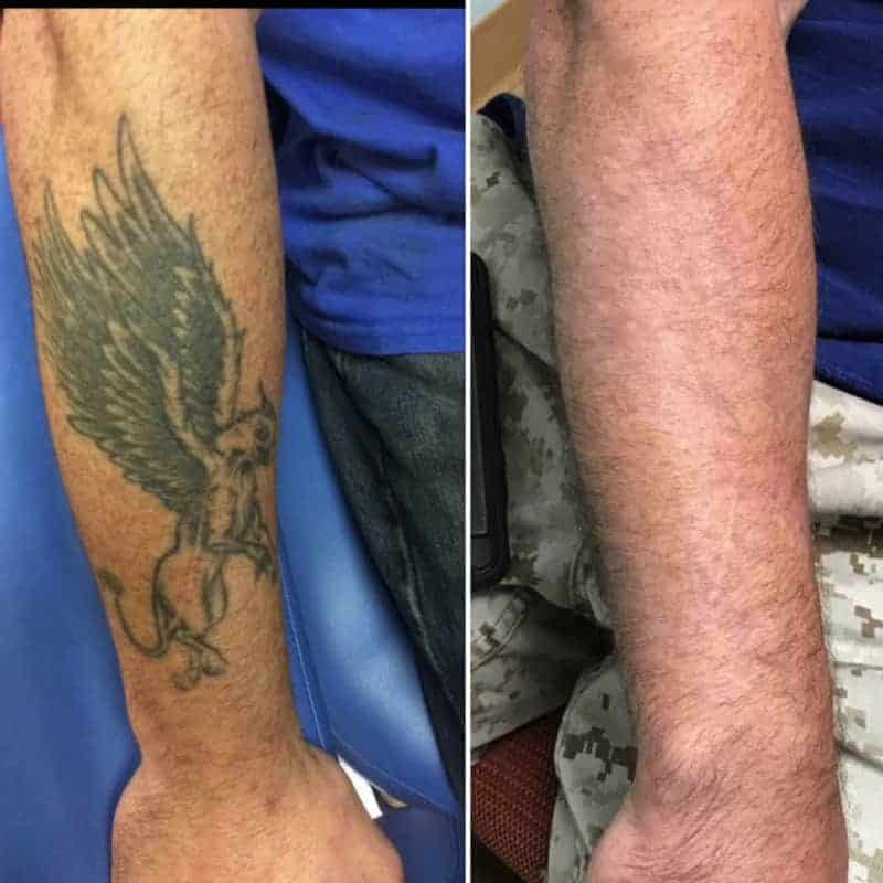 Tattoo removal before and after - True Clinic PJ KL Malaysia