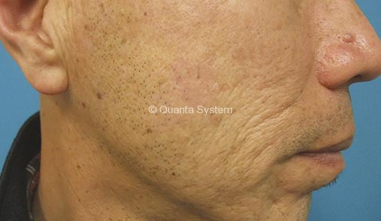 Benign Pigmented Lesions - after