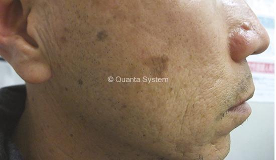 Benign Pigmented Lesions - before