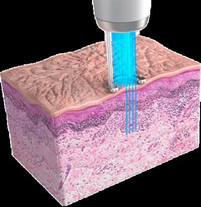 Skin Resurfacing using Discovery Pico Laser Malaysia